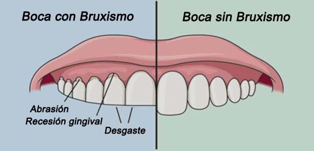 bruxismo02